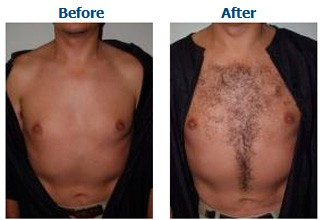 bodyhair-gurgaon
