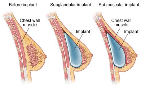 breast-augmentation-gurgaon