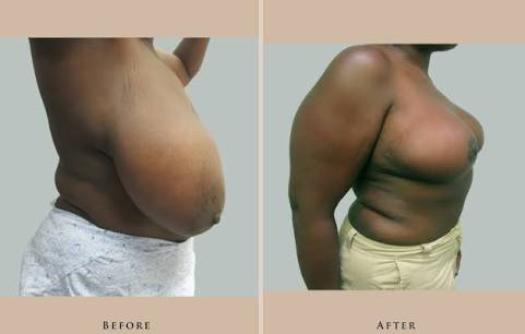 breast-reduction-incisions