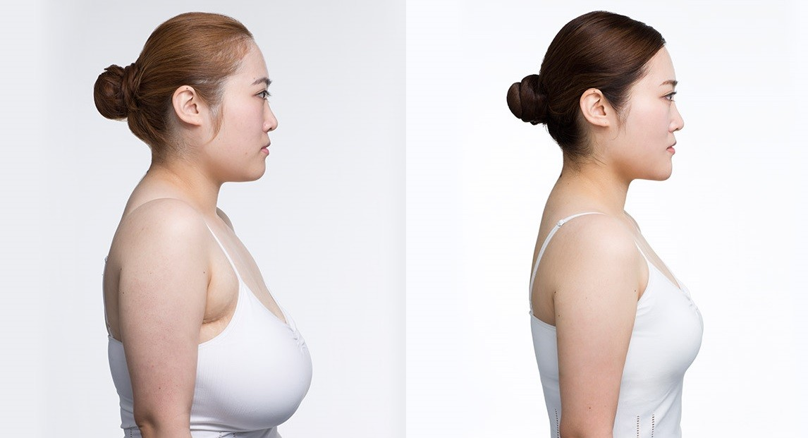 Female Breast Reduction in Gurgaon