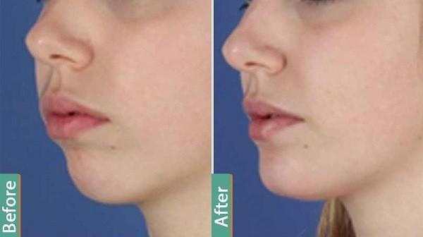 chin-implants