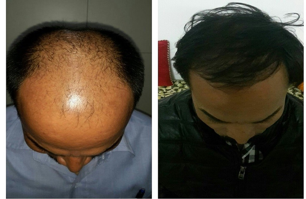 direct-hair-transplant