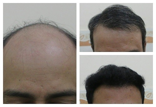 fue hair transplant in delhi ncr