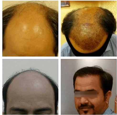 hair transplant in gurgaon