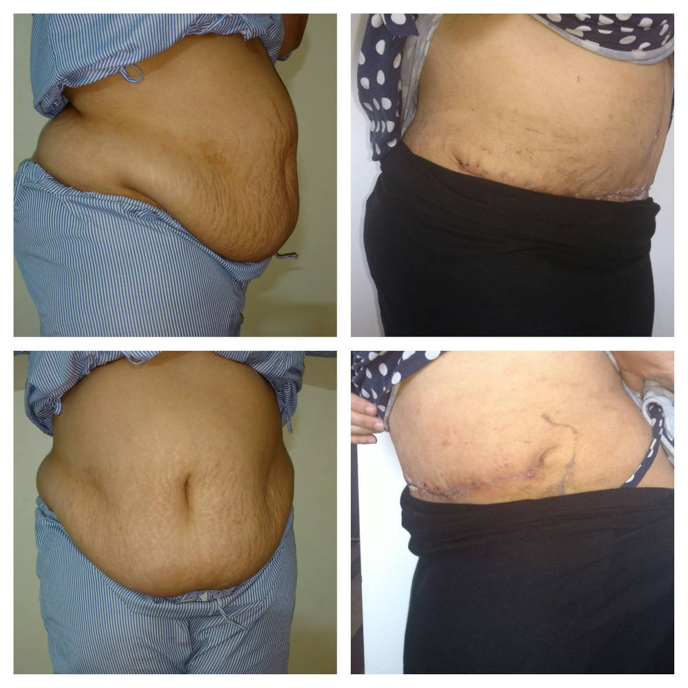 tummy-tuck-abdominoplasty-gurgaon