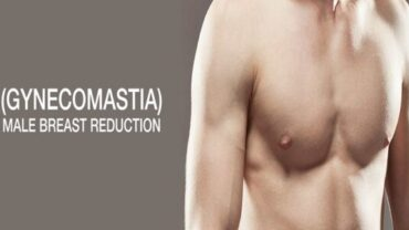 gynecomastia surgery india