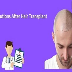 Post Operative Care and Precautions After Hair Transplant