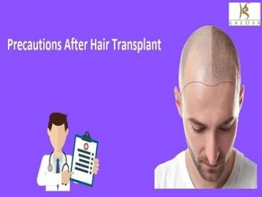 Care After Hair Transplant Surgery
