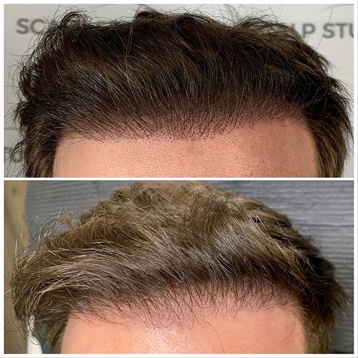 scalp micropigmentation in gurgaon