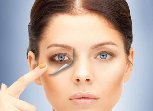 under eye dark circles treatment in gurgaon