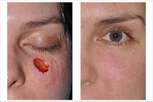 Wound Care and Burns Surgery in Gurgaon