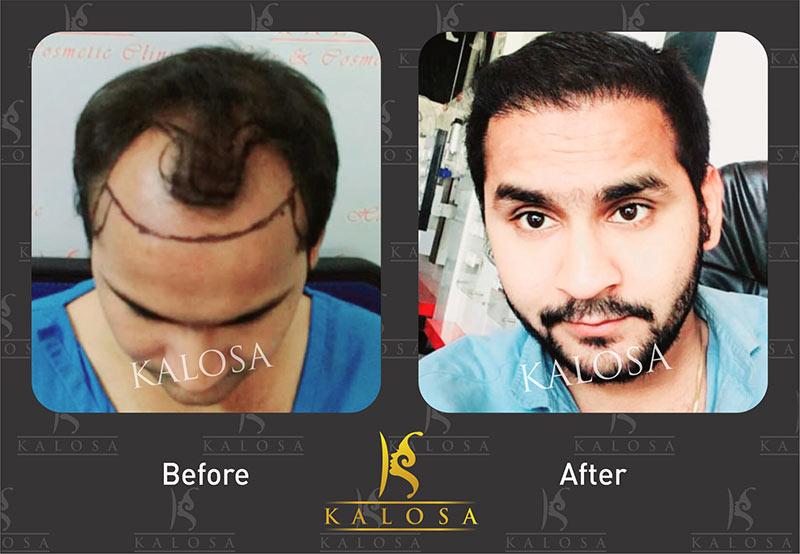 hair transplant in kanpur